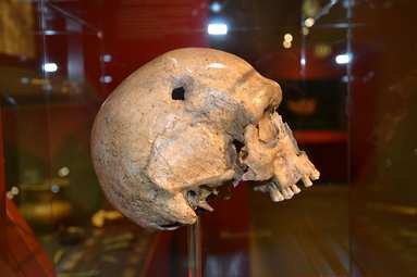 Steinzeitliche Schädeloperation, © KBB Weiß